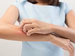 Как да успокоите сърбяща кожа само за 60 секунди?