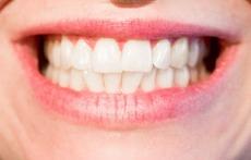 Лесни трикове за избелване на зъбите вкъщи (галерия)