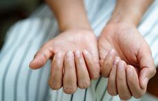 Скрити здравословни проблеми, които предизвикват промени в ноктите
