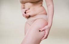 Как да стегнете корема след раждането