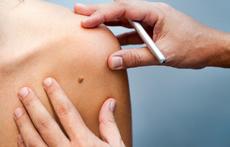 Проверете бенките си – дерматолози преглеждат безплатно във ВМА