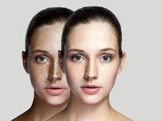 Витамини при хиперпигментация на кожата