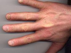 Ноктите могат да подсказват за наличие на заболяване