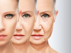 Какво показват бръчките на лицето за здравето ви?
