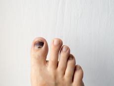 Възможни причини за почерняване на ноктите