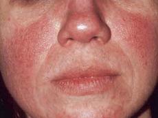 Топ 4 причини за почервеняване на лицето
