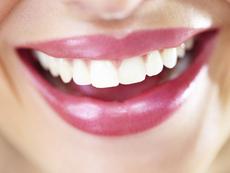 5 лесни трика за избелване на зъбите