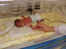 Спасиха 3 недоносени бебета по 800 грама в Бургас