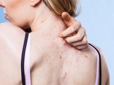 Какво причинява акне по гърба?