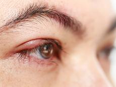 Домашни лекове при ечемик на окото