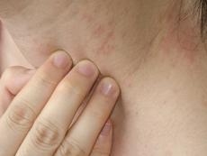 Що е то студова алергия?