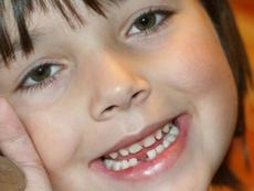 Първият стоматологичен преглед на детето