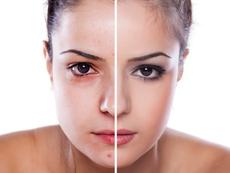 Как чертите на лицето подсказват за различни заболявания?