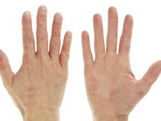 Симптоми и лечение на екземата