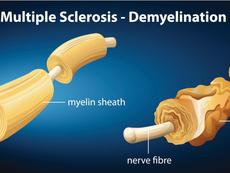 Неочаквани предпоставки за развитие на множествена склероза
