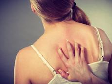 Натурални лекове при акне по гърба и деколтето