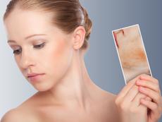 Натурално премахване на хиперпигментация по лицето