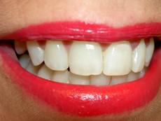 Грижа за чувствителните зъби в няколко стъпки