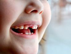 Поникване на млечни зъбки – какво е важно да се знае?