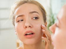 Ежедневни грешки, които изсушават кожата и я увреждат