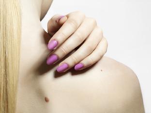 Какво показват за личността ви бенките по тялото?