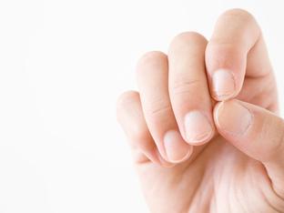 Ноктите ви се разслояват и чупят – какво означава?