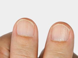 Какво означава, ако имате ивици по ноктите?