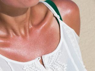 Какво да не правим при слънчево изгаряне