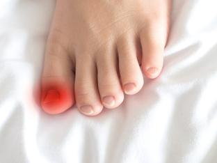 Как да се справите с врасналите нокти на краката?