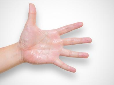 Какво предизвиква изпотяване на ръцете?