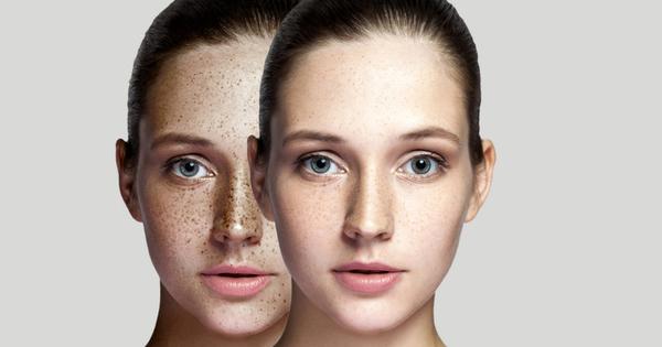 Снимка: Витамини при хиперпигментация на кожата
