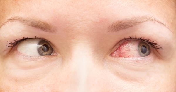 Зачервените очи понякога са просто признак на умора и изтощение,