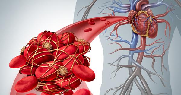 Много хора не знаят, че страдат от сгъстяване на кръвта