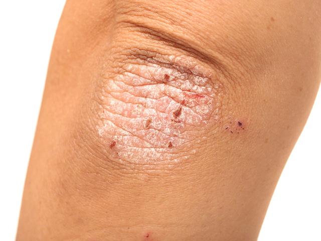 Интертригинозен псориазис – какви са причините?