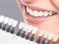 3 ефикасни метода срещу зъбен камък и плака