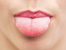 Състояния, за които цветът на езика може да подсказва